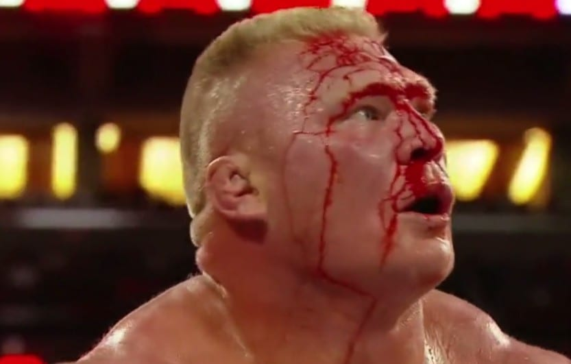 Brock Lesnar busted open at WrestleMania 31