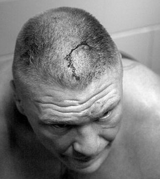 Brock Lesnar 9 Staples In Head - Hell in a Cell 2015