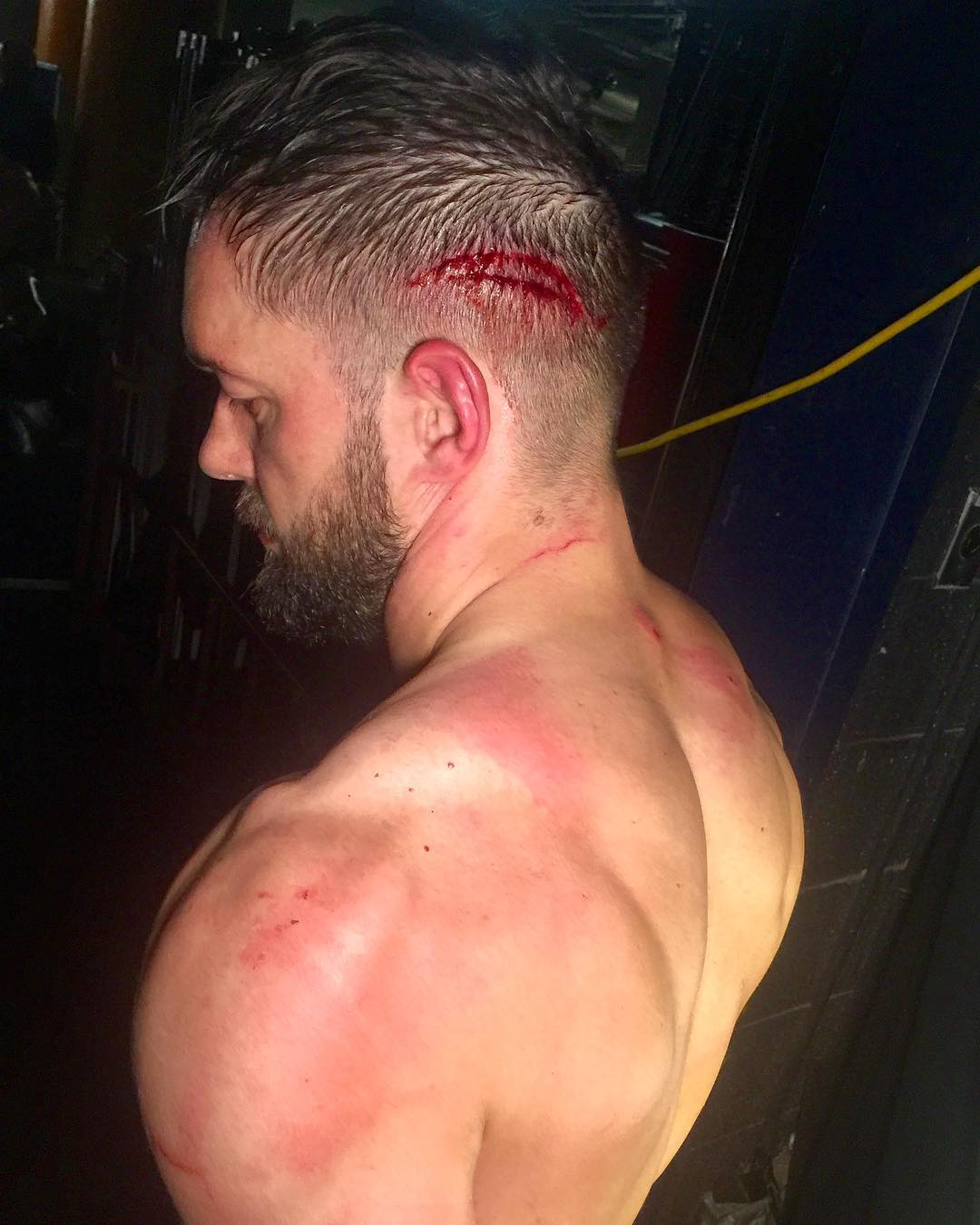 Finn Balor suffers a cut on the back of his head after eating a Guitar shot from Elias Samson on Raw