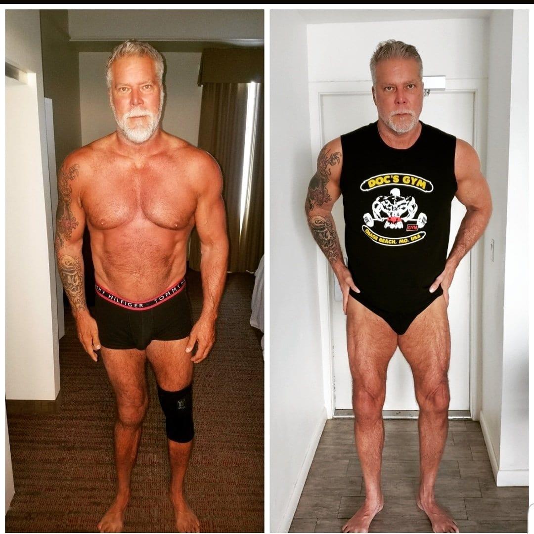 Kevin Nash Deformed Legs