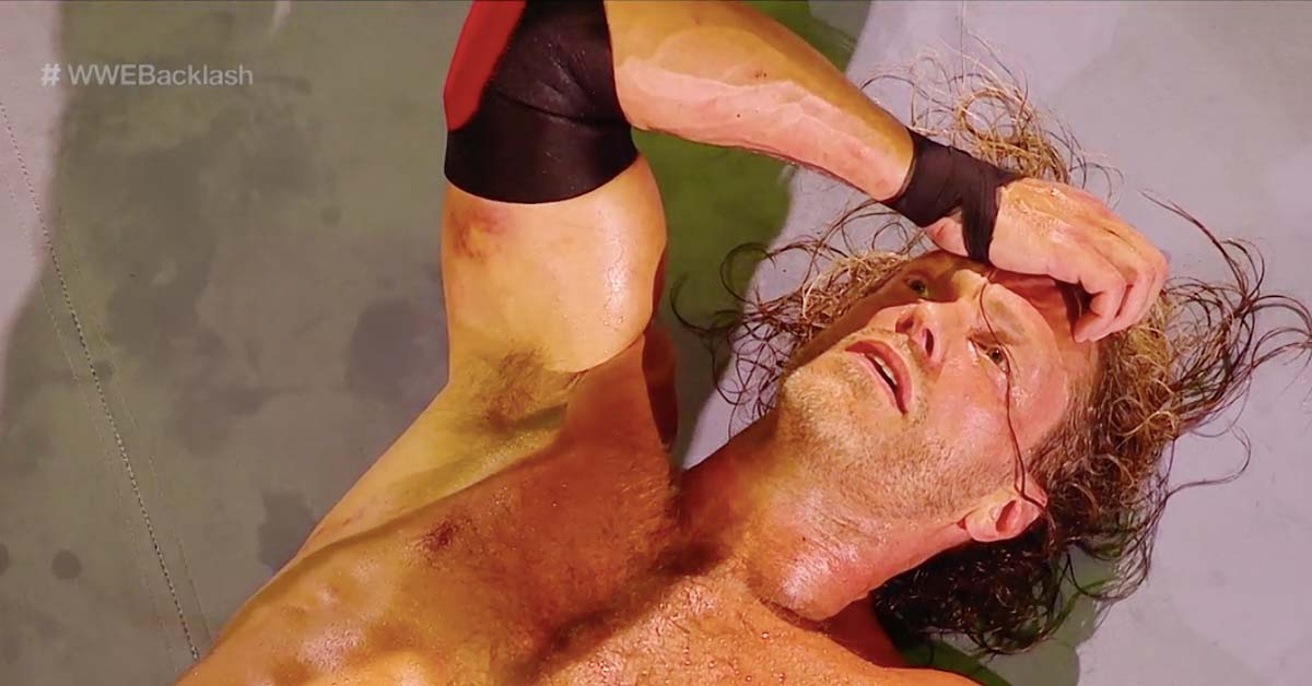 Photo Of Edge's Right Triceps Injury At WWE Backlash 2020