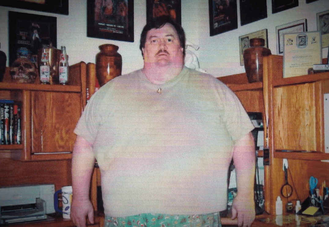 Paul Bearer Morbidly Obese 525 Lbs Before Gastric Bypass Surgery 2003